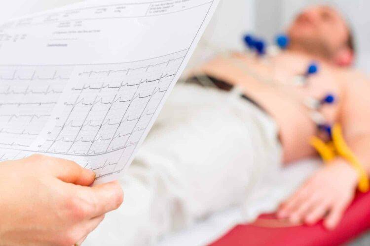 Patient ECG Chest Pain